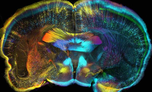 mappa interconnessioni cerebrali